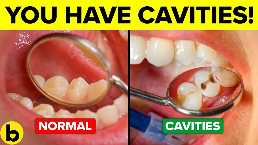 You're Getting Cavities And You Don't Even Know It!