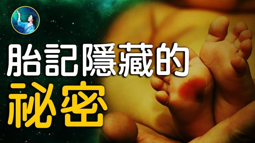 你身上的胎記是很有意義的,是使命還是傷痕?揭開雙胎記背後的秘密。| #未解之謎 扶搖