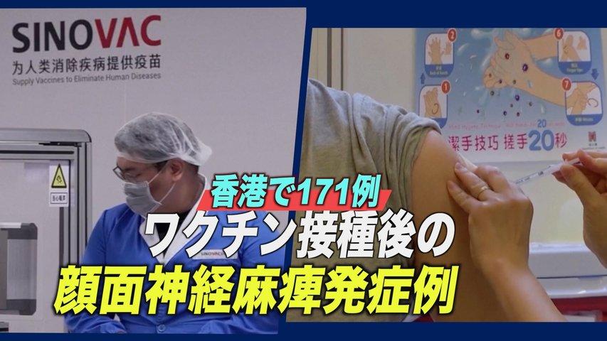 ワクチン接種後の顔面神経麻痺発症例 香港で合計171例